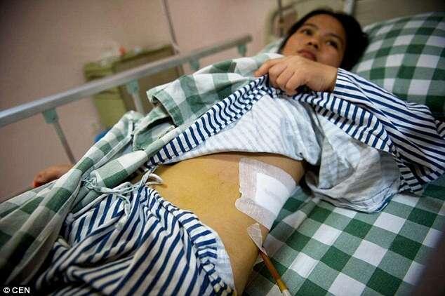 Wai Jianmin teve rim retirado durante pequena cirurgia