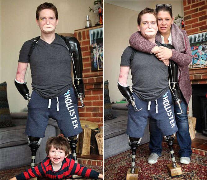 Homem que perdeu braços e pernas, aprende a andar para caminhar até altar e se casar