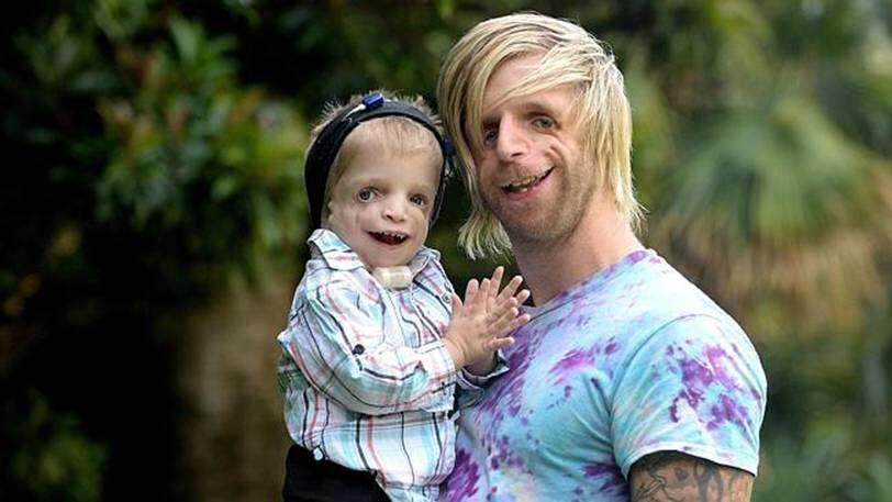 Homem com doença rara que impede crânio e bochecha de se desenvolverem viaja para encontrar criança com mesma condição