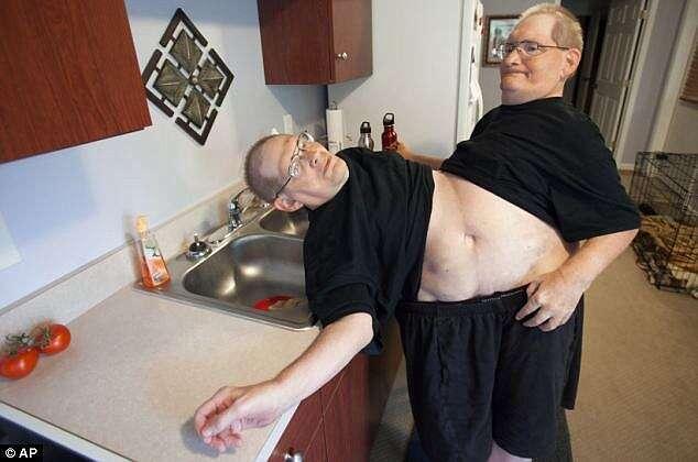 Gêmeos siameses mais velhos do mundo