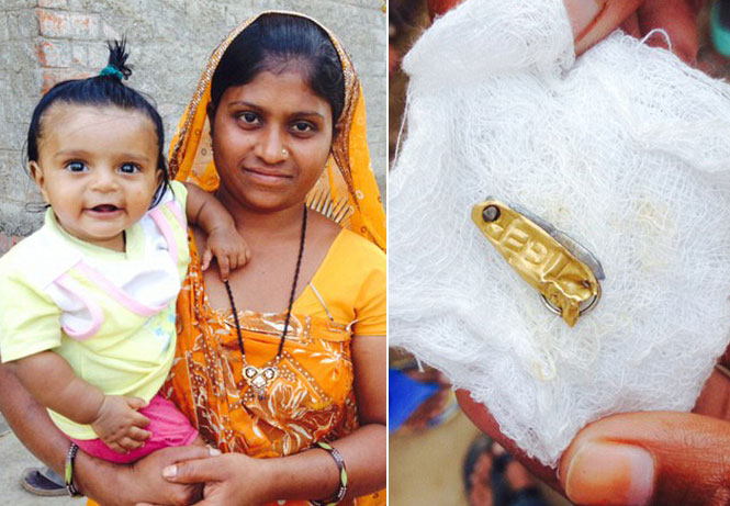 Bebê engole canivete que usava para afastar maus espíritos em tradição indiana, e passa por cirurgia de risco