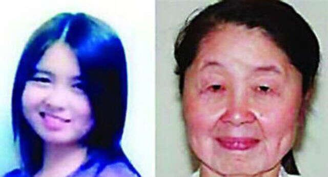 Mulher de 28 anos com doença rara procura cirurgia plástica