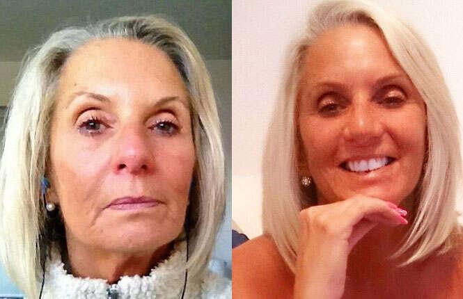 Mulher de 63 anos gasta mais de 60 mil reais em procedimentos cirúrgicos