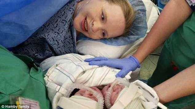 Gêmeos siameses nascem saudáveis apesar de compartilharem mesmo corpo e coração