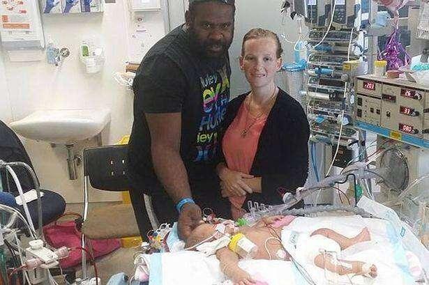 Bebê recém-nascido morre após ser beijado por pessoa com herpes