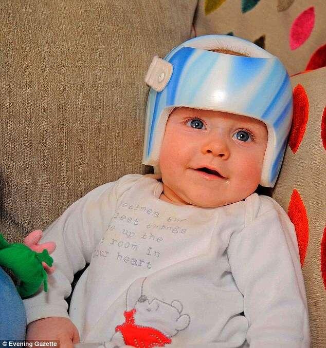 Bebê com síndrome da cabeça chata usa capacete especial