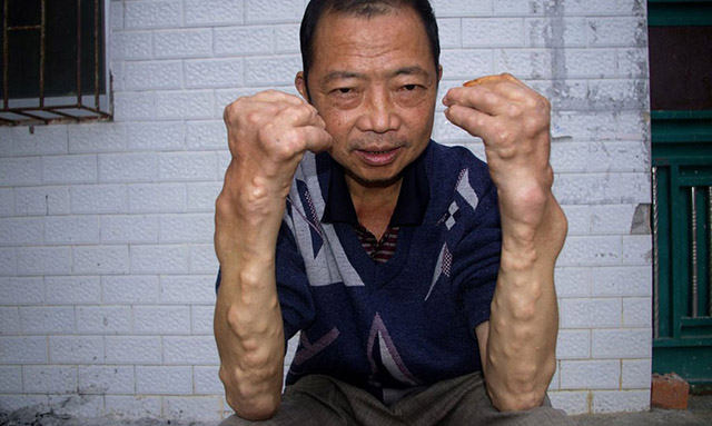 Moradores de aldeia chinesa ficam com corpo deformado por conta de enorme poluição local