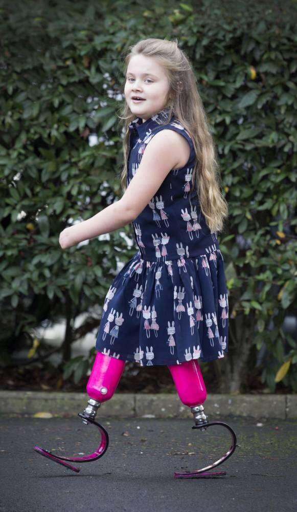 Menina volta a correr após quatro anos