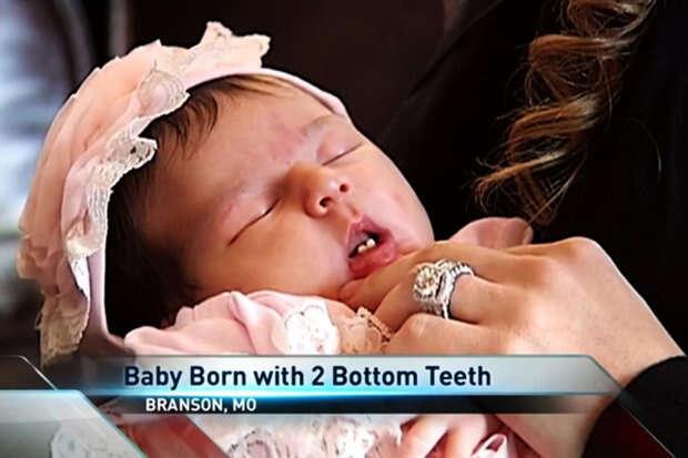 Bebê Alyssa nasceu com dentes em hospital de Nova York