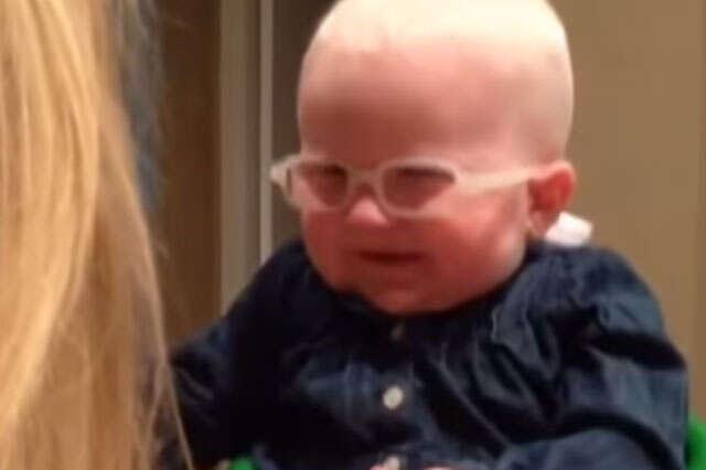 Veja reação de bebê com condição rara nos olhos ao ver sua mãe pela primeira vez