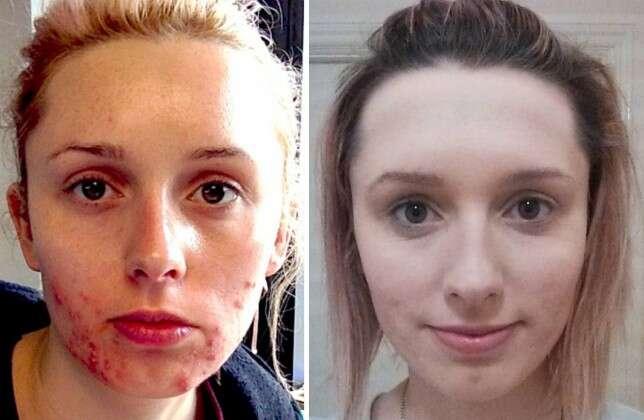 Mulher com problema grave de acne fica com pele lisa em questão de meses