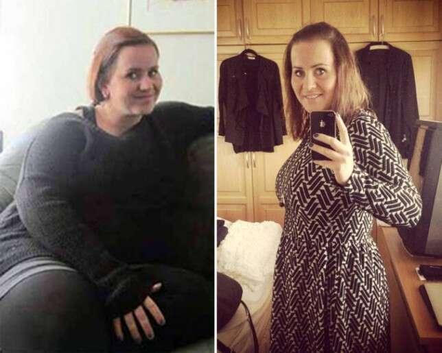 Obesa perde 50 quilos em 1 ano publicando selfies do antes e depois para se motivar
