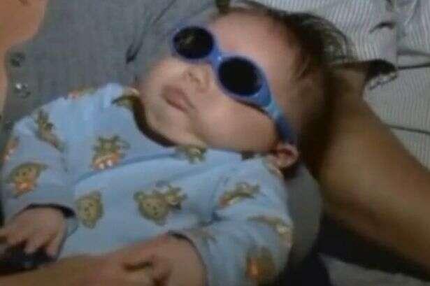 Bebê nasce sem os olhos após desenvolver doença rara