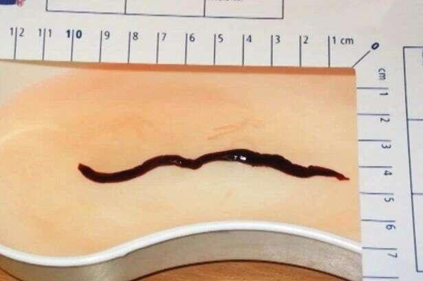 Mulher morre após parasitas comerem seu rim e atacarem sua bexiga
