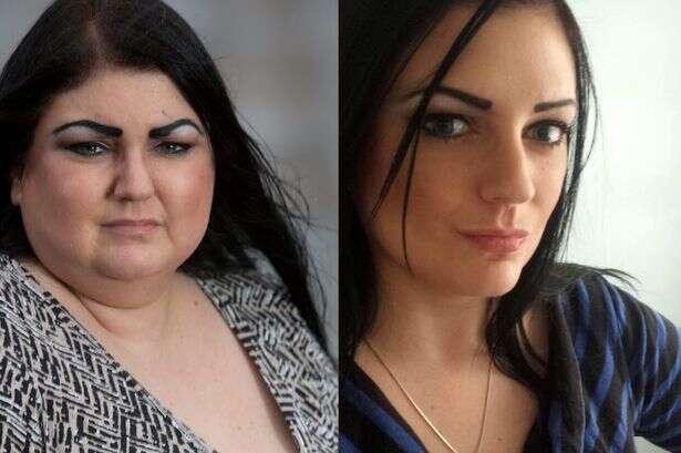 Mulher com doença misteriosa a faz engordar 6 quilos em um dia, e dobra de peso após seis meses tentando encontrar a cura