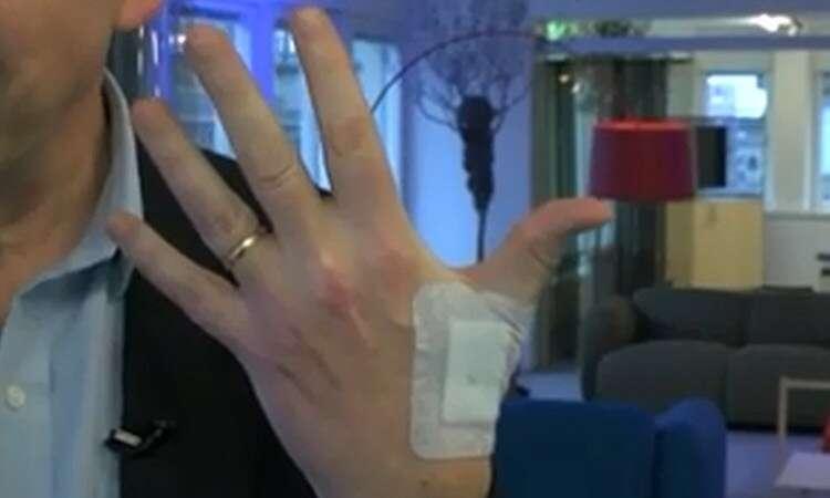 Escritório causa polêmica ao fazer com que funcionários implantem chips nas mãos