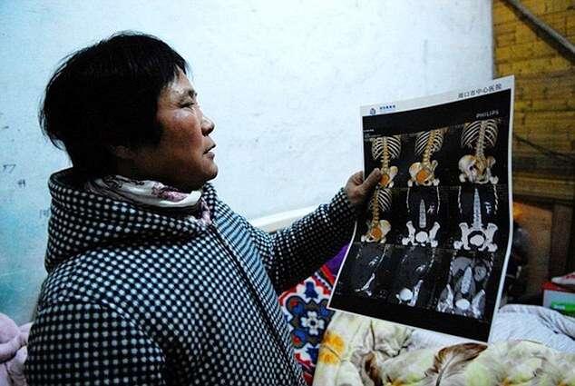 Mulher tem rim roubado após cirurgia de suposto câncer