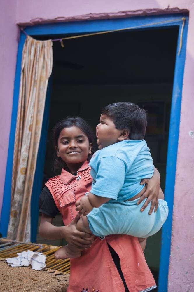 Bebê indiana que pesa quase 20 quilos, deixa pais desesperado para encontrarem diagnóstico para sua obesidade
