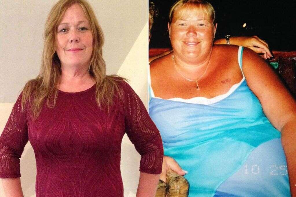 Obesa perde 63 quilos e gasta quase 100 mil reais com cirurgias retirar pele flácida
