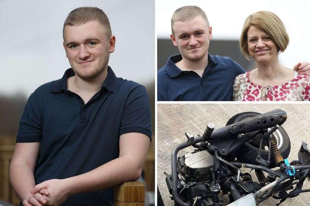 Jovem sofre acidente de moto e descobre tumor no cérebro