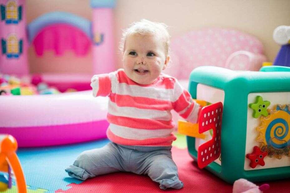 Bebê se torna exemplo de vida ao posar sorrindo após perder membros do corpo e parte do nariz para a meningite
