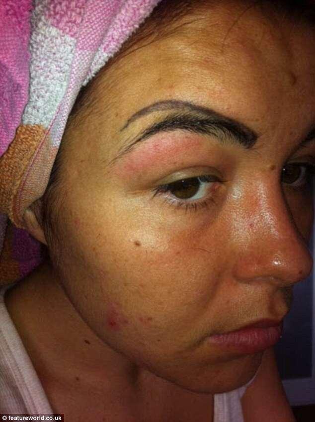 Mulher faz tatuagem no rosto para melhorar visual e acaba ficando com 4 sobrancelhas