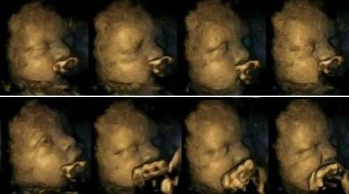 Feto de uma mãe não fumante (foto).