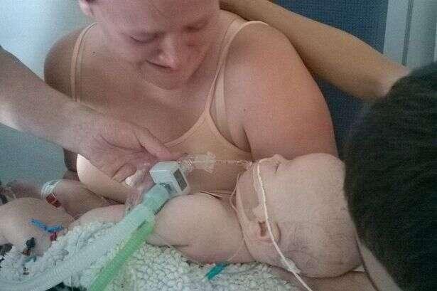 Bebê milagrosamente volta a respirar depois de pais decidirem desligar máquina que o mantinha vivo