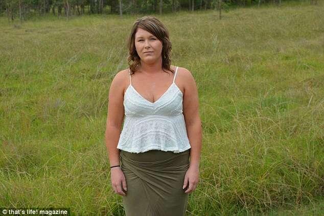 Mulher com dores insuportáveis fura a própria cabeça com uma faca e descobre tumor