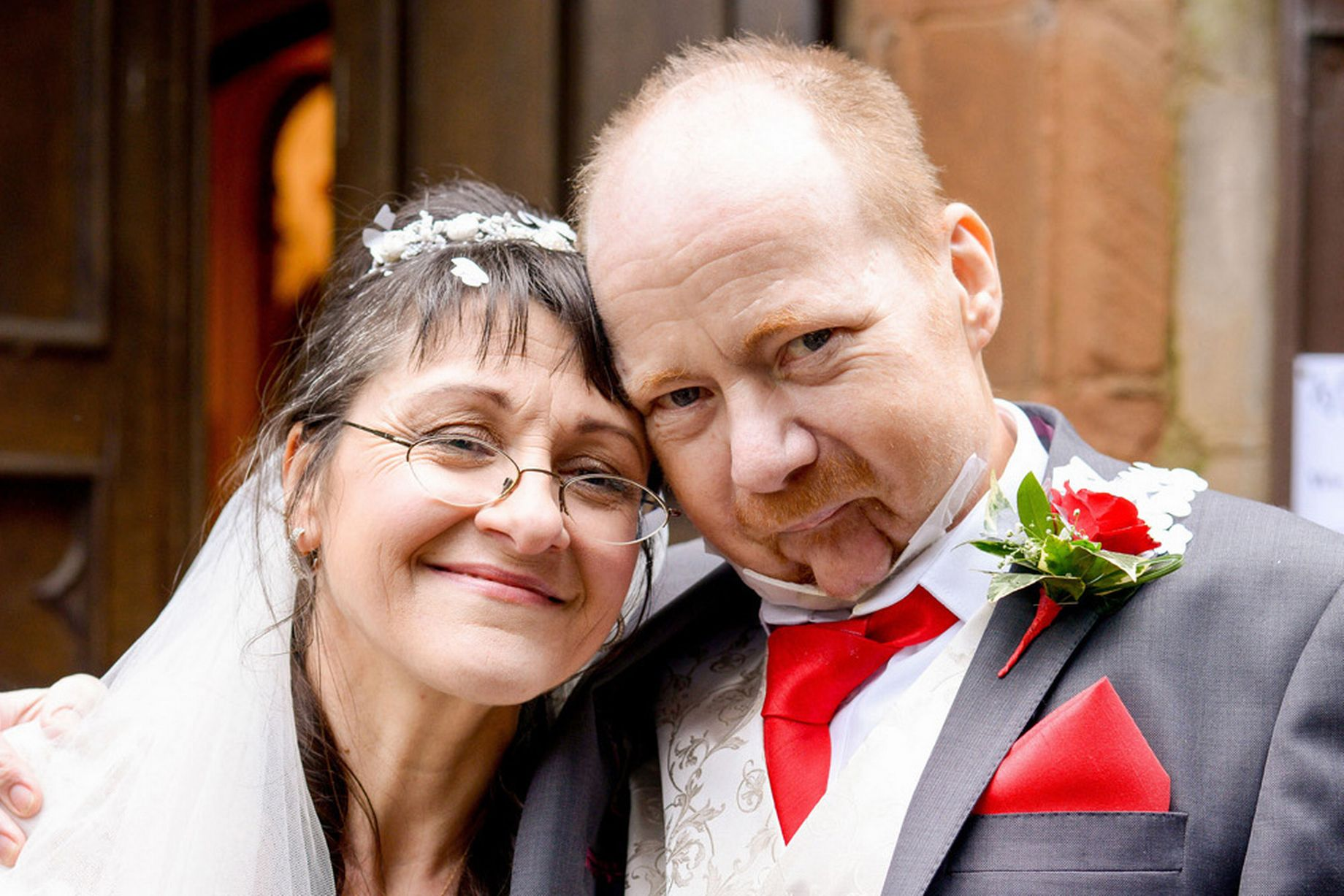 Noivo com doença terminal morre duas semanas depois de se casar