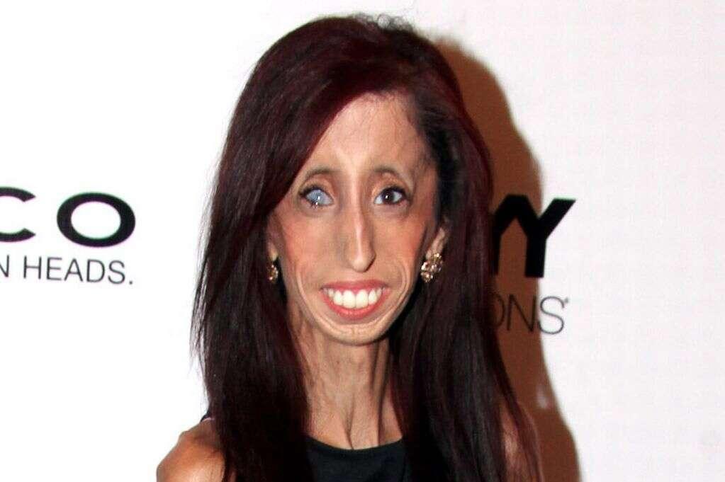 Jovem muda de vida depois de se ver em vídeo do YouTube intitulado como a 'mulher mais feia do mundo'