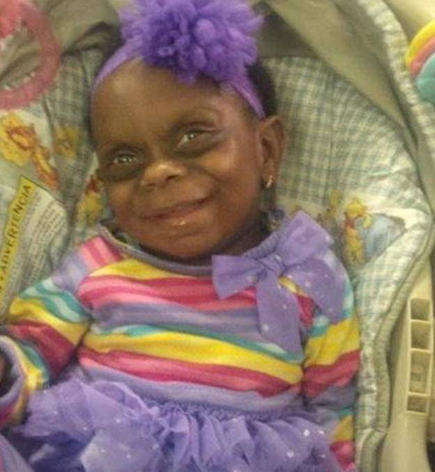 Internautas zombam de bebê com doença rara em foto postada pela mãe em rede social