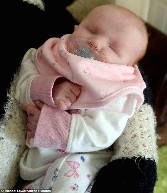 Bebê com condição rara nasce sem os olhos