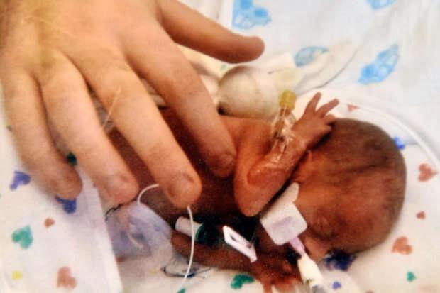 Bebê recebe alta do hospital após nascer pesando 400 gramas