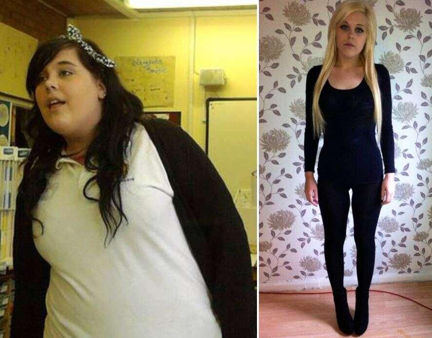 Obesa que perdeu 100 quilos por conta de doença quer voltar pra seu antigo peso