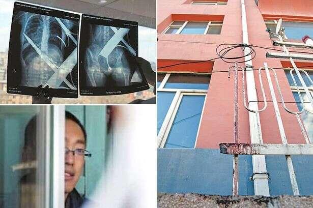 Menina de 12 anos sobrevive milagrosamente após cair de prédio e ficar empalada em grades de metal