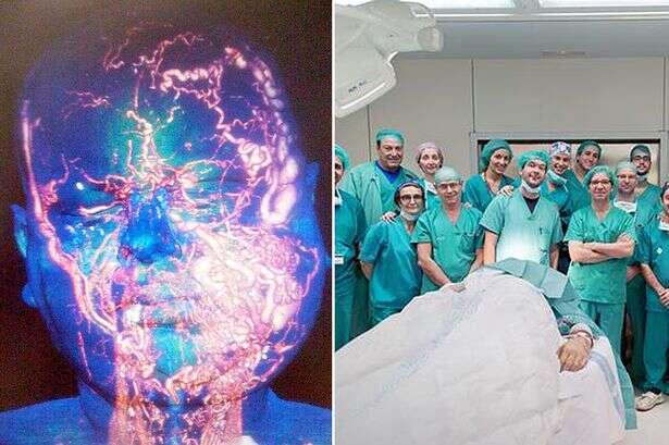 Primeiro transplante completo de rosto do mundo é realizado