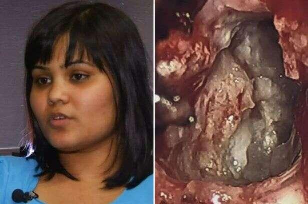 Mulher enfrenta cirurgia para remover tumor no cérebro e médico encontra gêmea embrionária em sua cabeça