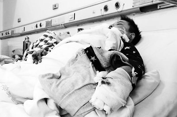 Menino de 12 anos sofre ferimentos graves no rosto depois de celular explodir