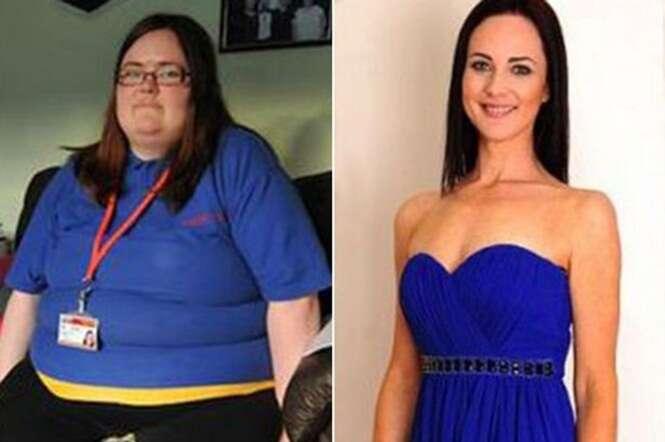 Mulher de 140 quilos vê foto dela em antes e depois e afirma que imagem de emagrecimento não é verdadeira