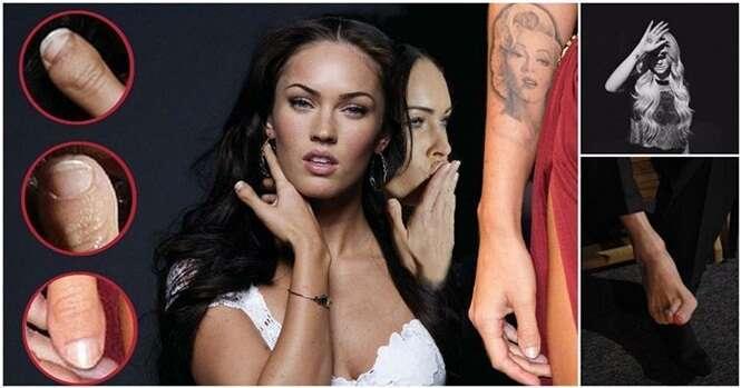 Imperfeições em famosos que mostram que ninguém é perfeito