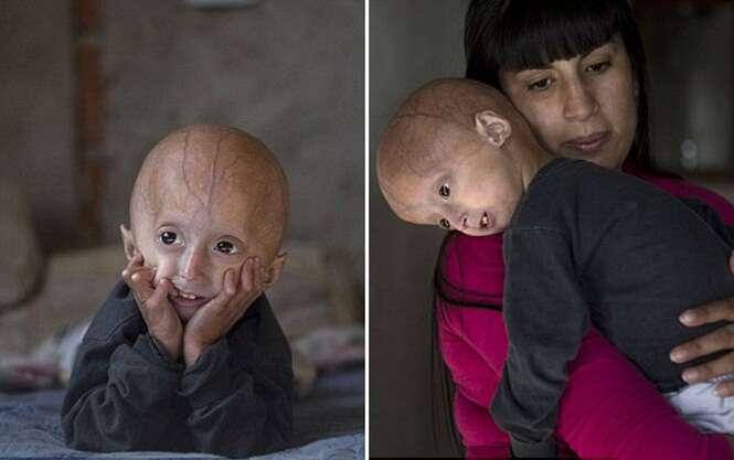 Menino de 4 anos luta contra doença que o faz viver na pele de um idoso
