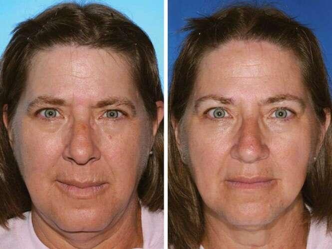 Gêmeos idênticos que mostram os efeitos do cigarro na aparência humana
