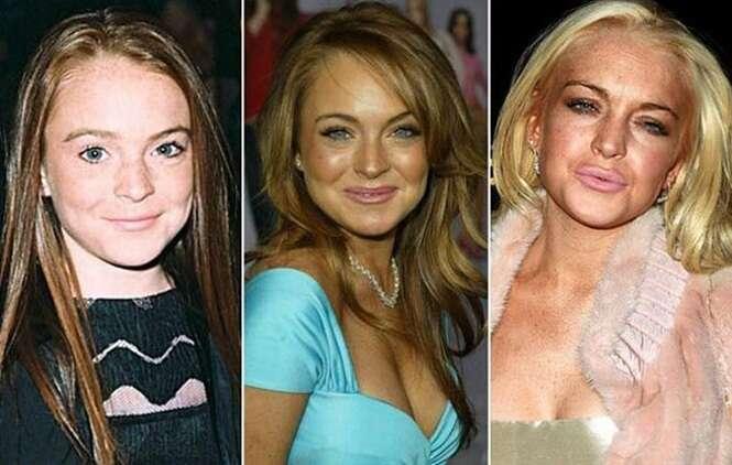 21 fotos impressionantes de celebridades antes e depois de ...