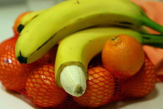 Sabe o que significa circuncisão masculina?