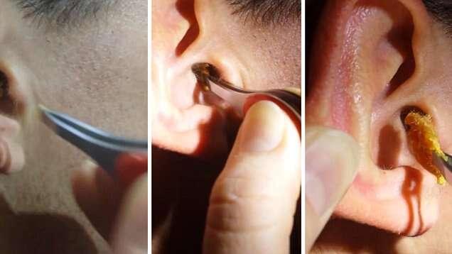 Vídeo nojento se torna viral ao mostrar mulher tirando enorme quantidade de cera de ouvido de homem