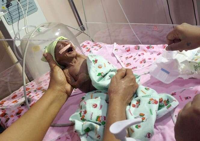 Pais abandonam bebê que nasceu com pele enrugada