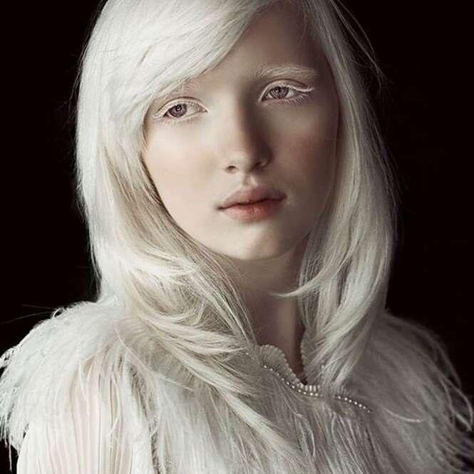 naked albino woman girl