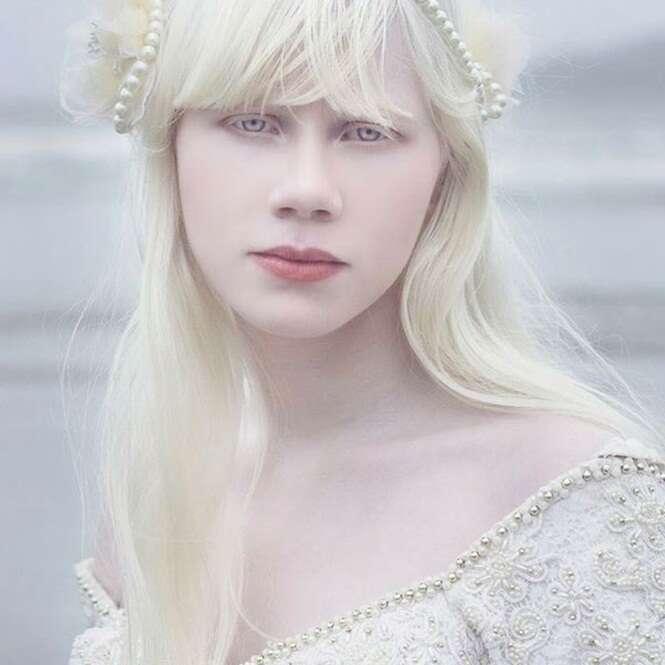 As mais belas pessoas albinas do mundo