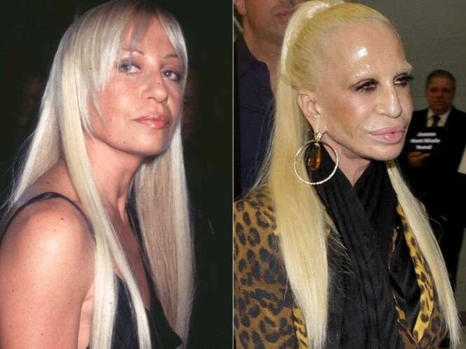 Piores casos de cirurgias plásticas em celebridades